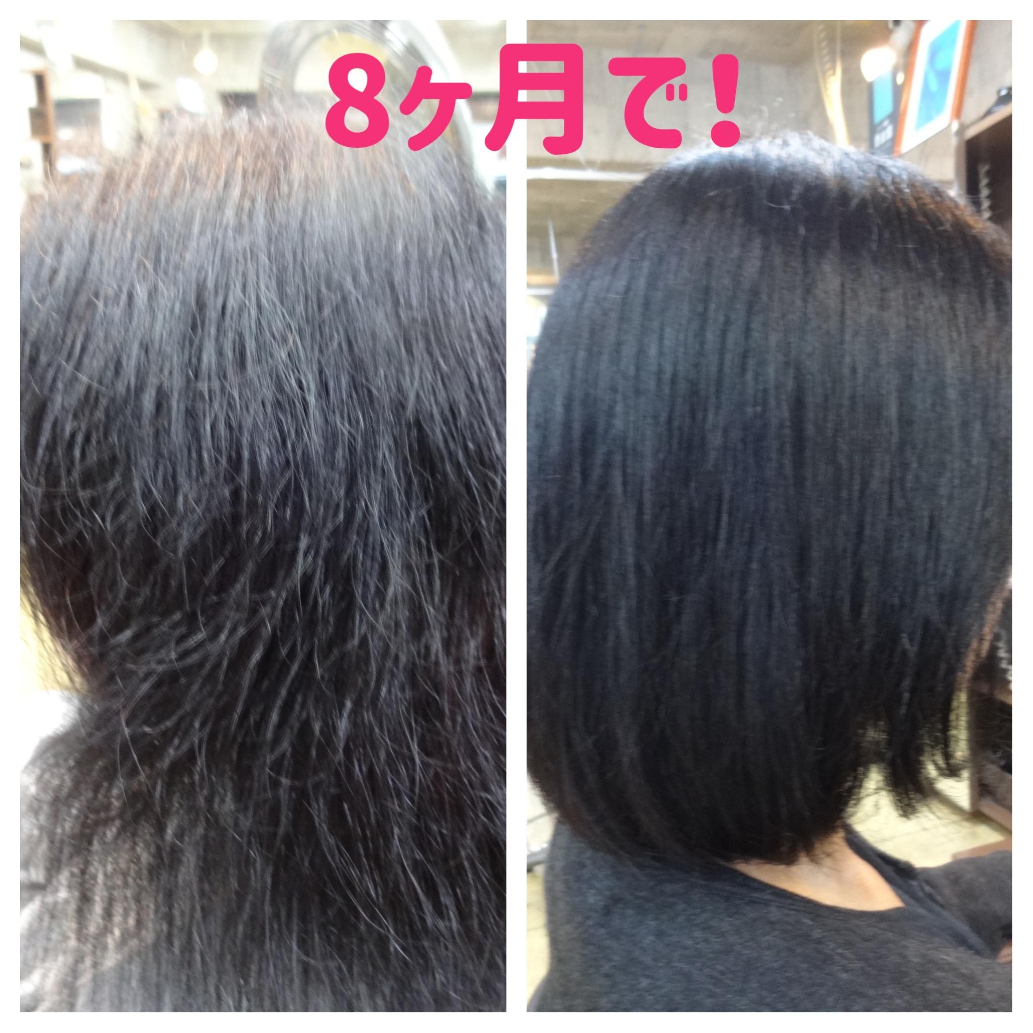 vol.2 【事例】貧血で切れ毛の方にnonaヘアソープで驚きの8か月後!
